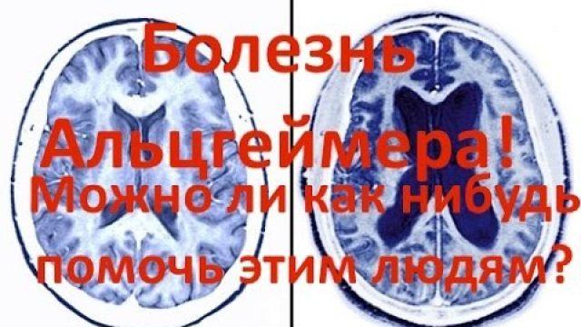 Болезнь Альцгеймера - причины, симптомы и возможно ли излечится